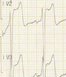 detail svodu V2 a V3 - monitor (týž pacient)