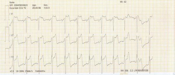 Týž pacient ve stejnou dobu, monitorovací režim - závažné elevace ST úseku
