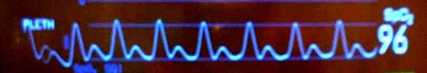 Plethysmografická křivka s nápadnými dikrotickými zářezy