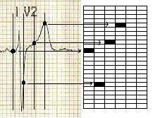 Schema převodu spojité křivky do digitální podoby - tabulky nespojitých hodnot